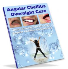 Angular Cheilitis Overnight Cure by Katherine Sage