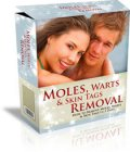 Moles Warts and Skin Tags Removal